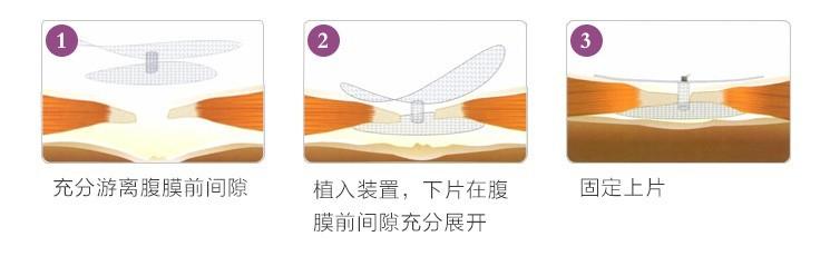 助展式胶膜前疝修补装置